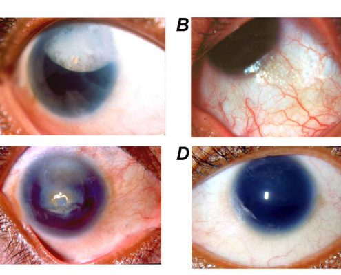 Phenotypic expression of aniridia with PAX6 gene mutation. The aniridic probands showed typical features of sclerocornea with nystagmus in proband 28–1 (A); Foveal hypoplasia in proband 27–1 (B); Ptosis, microcornea with dislocated cataractous lens in proband 10–1 (C); Ectopia lentis in proband 16–1 (D).